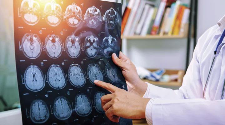Lower Homocysteine to Slow Brain Aging