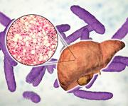 How Probiotics Protect Against NAFLD