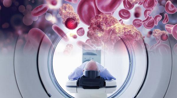 A New Cardiovascular Threat Ionizing Radiation