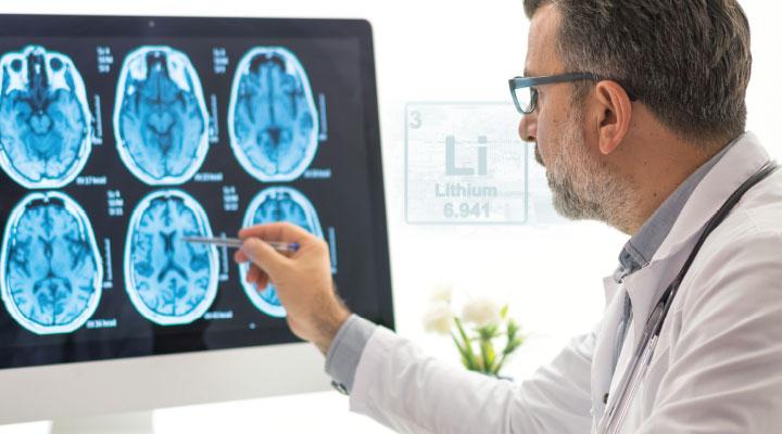 Lithium and Alzheimer's Risk banner
