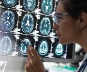 Protecting brain cells against neurodegeneration